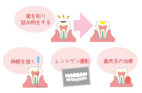 妊娠中 歯医者 治療
