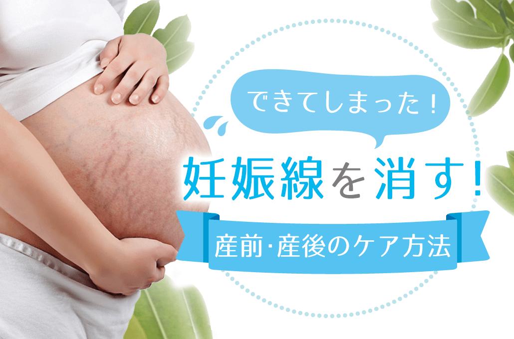 妊娠線 消す