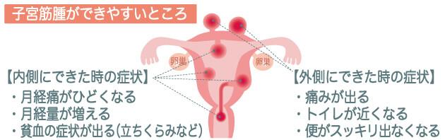 子宮筋腫の図