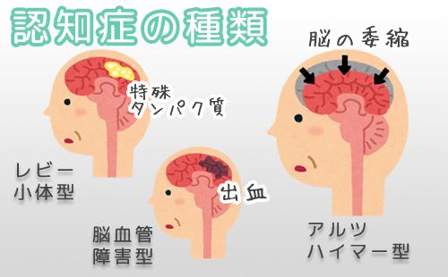 認知症の種類