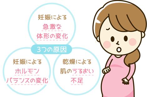 妊娠線 原因