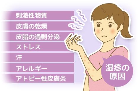 湿疹 原因