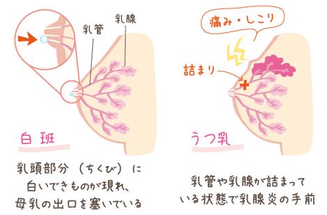母乳詰まりの症状1