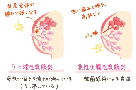 母乳詰まりの症状2