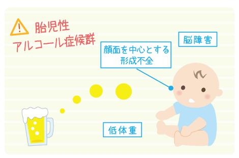 胎児性アルコール症候群とは