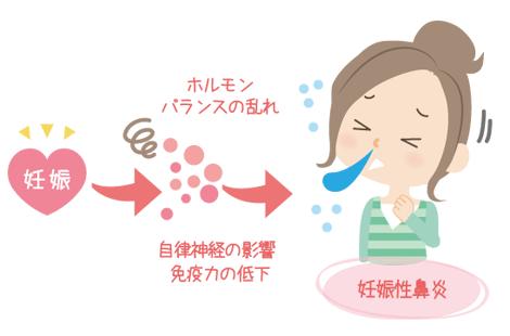 妊娠性鼻炎とは?