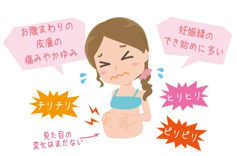 妊娠線 痛みの症状