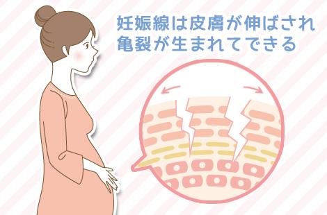 妊娠線のできる原因