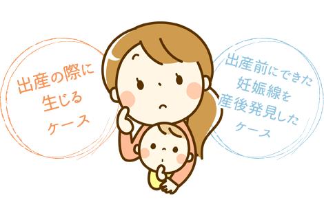 産後にできる妊娠線