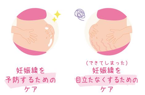 妊娠線クリーム 目的と時期